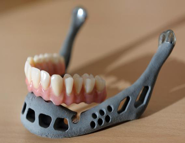 2012: Doctors Transplant First-Ever Custom, 3-D Printed Jawbone