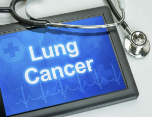 5 Alarming Statistics that Prove We Need Greater Awareness Around Lung Cancer