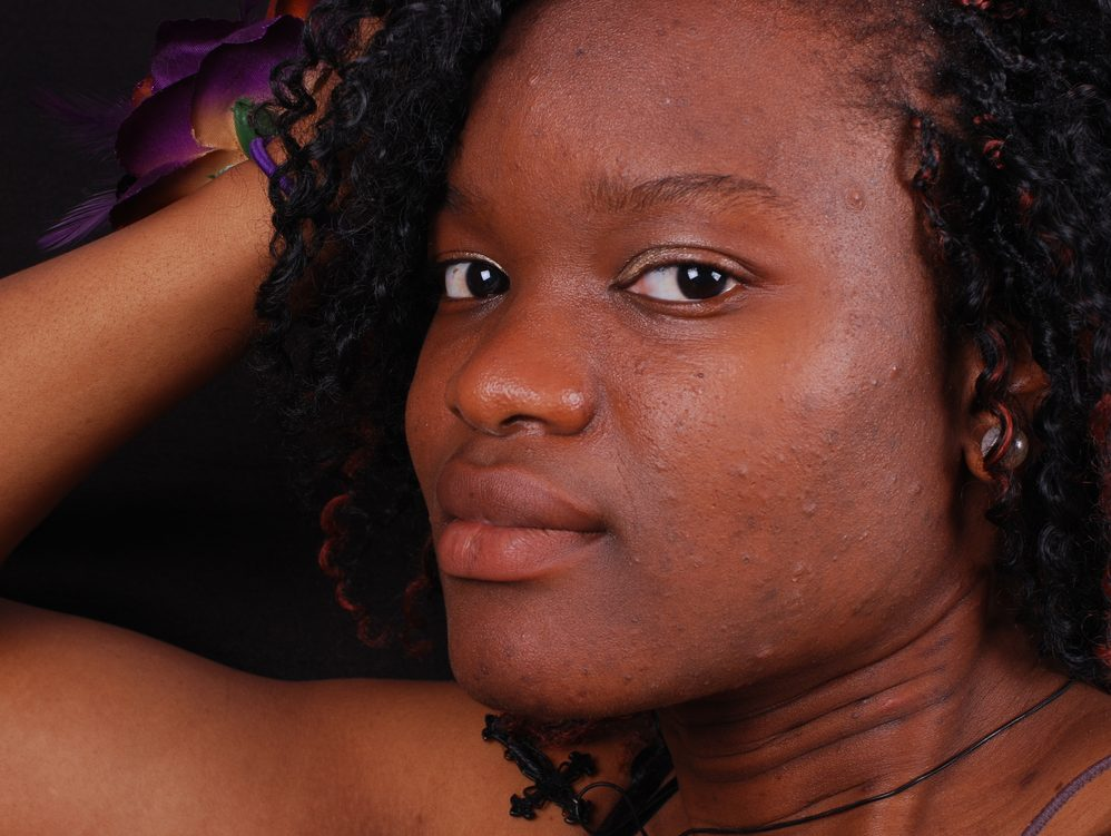 This May Be The Best Skin Treatment For People Of Color With Dark
